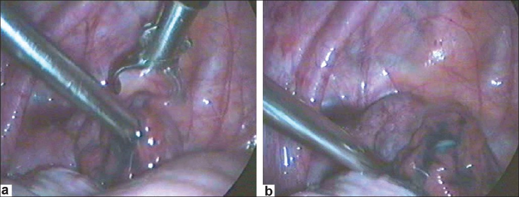 Figure 9 (a and b): Deagglutination of fimbria or broadening of the phimotic tubal opening