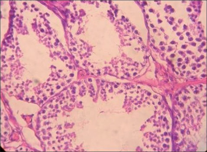 Figure 3 :Histopathology of the testis in rabbits fed on NaF (20 mg/ kg) for 60 days