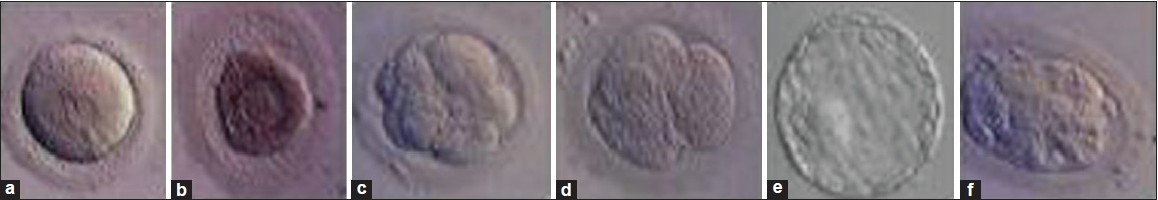 Figure 1: Post-thaw embryos: examples of (a) viable thawed zygote, (b) non-viable thawed zygote, (c) viable thawed D3 embryo, (d) non-viable thawed D3 embryo, (e) viable thawed blastocyst, (f) non-viable thawed blastocyst