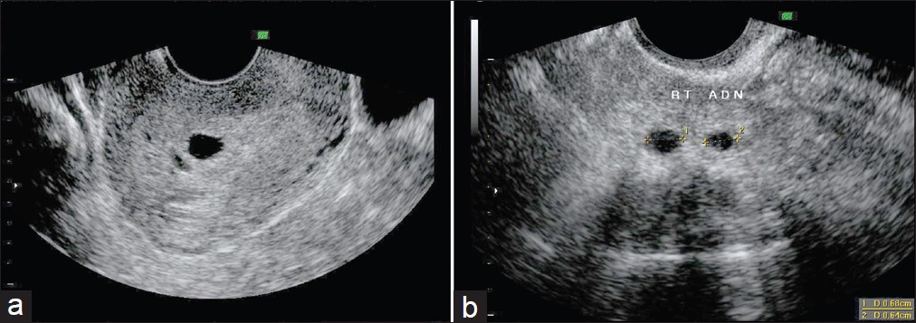 Figure 1: Heterotopic pregnancy. (a) Two intrauterine sacs, (b) Two right adenexal sacs