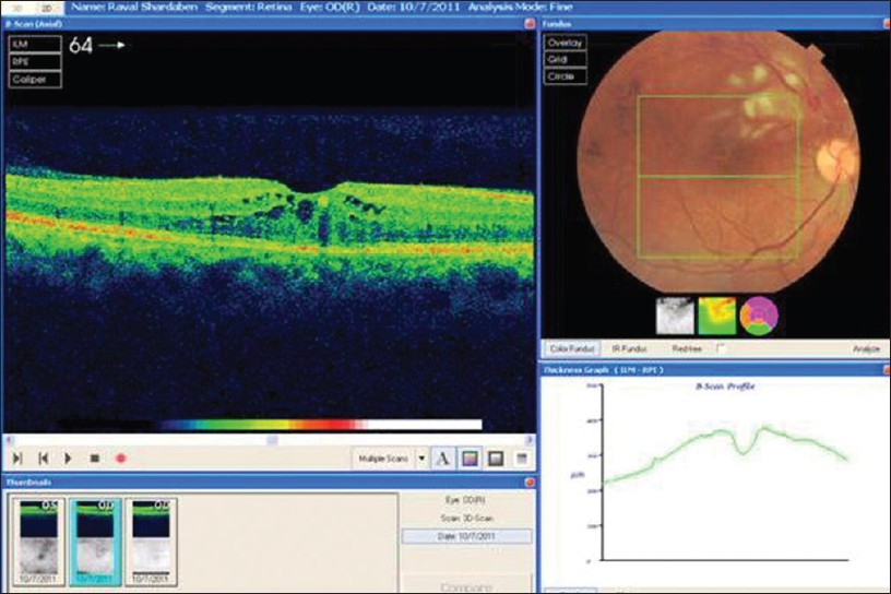 Figure 2: Fundus photograph showing right eye having upper temporal branch retinal vein occlusion with optical coherence tomography showing macular edema