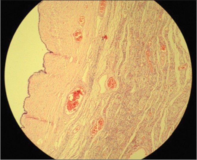 Figure 3: Microscopic appearance of the left gonad (H and E, ×10)