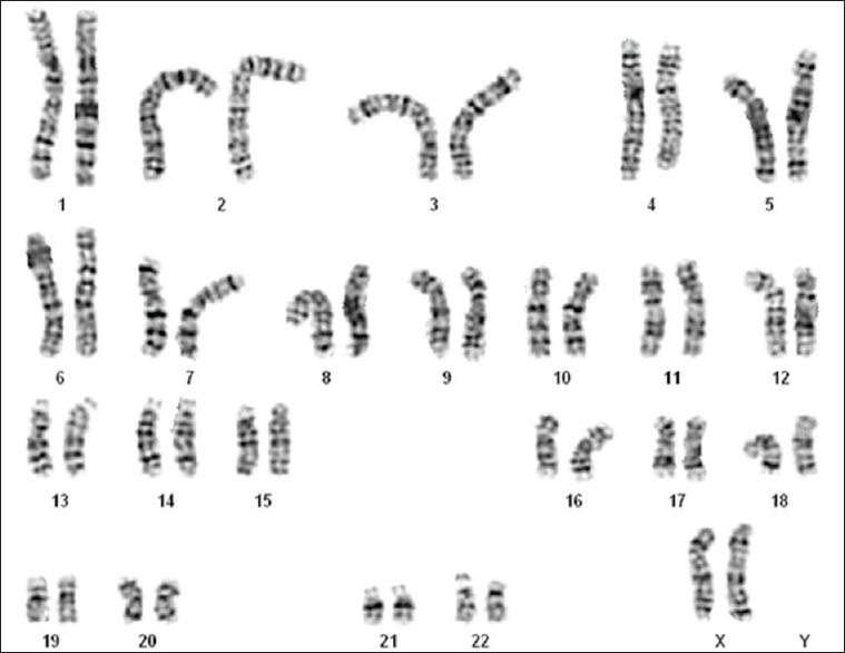 Figure 3: Karyotype showing normal female genotype with two X chromosome