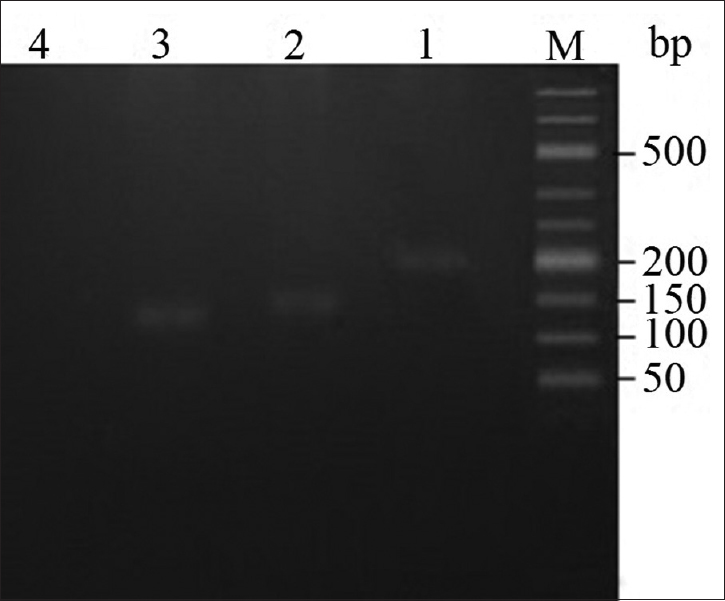 Figure 3: Representative picture of an agarose gel (3%) that indicates the electrophoresis results of reverse transcriptase polymerase chain reaction products for Tektin-2, triose phosphate isomerase, and β-actin. M, size marker, line 1, β-actin as positive control (204 bp), line 2, triose phosphate isomerase (121 bp), line 3, Tektin--2 (145 bp), and line 4 as negative control