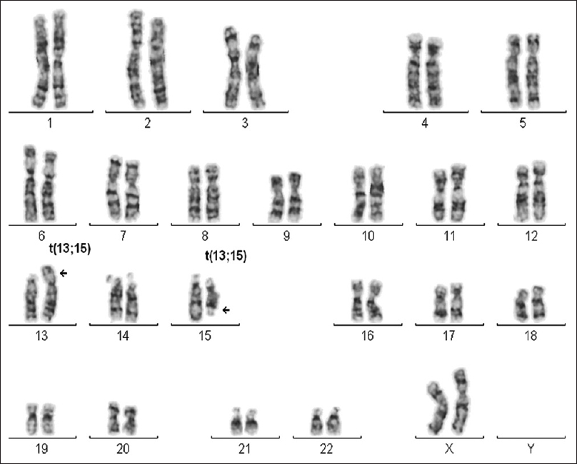 Figure 1: G-banded karyotype showing the t(13;15)(p11.2;q22.1)