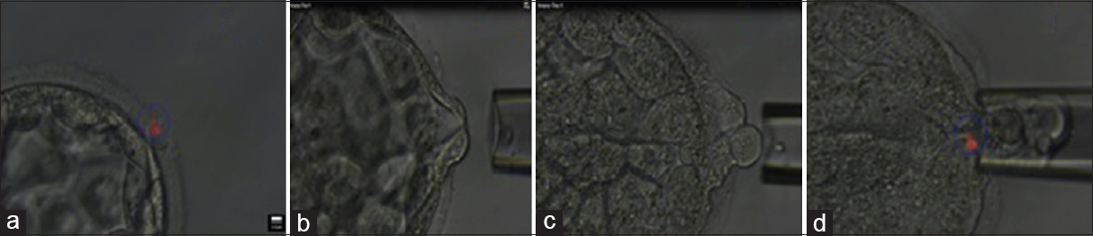 Figure 1: Laser-assisted trophectoderm biopsy: (a) Partial zona pellucida dissection with laser beam, (b) suction of cell of trophectoderm by vacuum created in pipette, (c) suction of cells of trophectoderm, (d) laser-assisted separation of trophectoderm cells from the mass