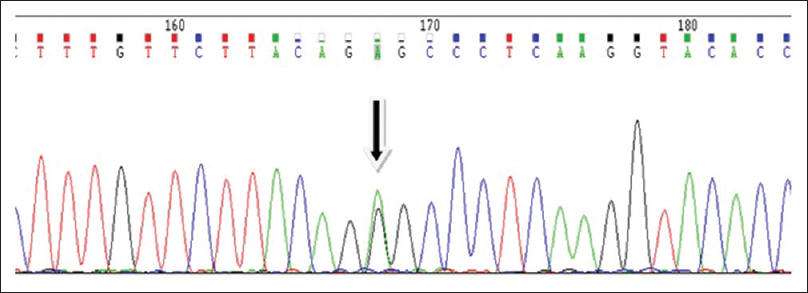Figure 3: A representative image of COL4A1 normal and mutant alleles (c.1537G>A) coexisting in heterozygous condition. The black arrow indicates a green color peak superimposed on a black one indicating presence of G (guanidine) base in the hotspot region in one copy of the gene while A (adenine) base in the other