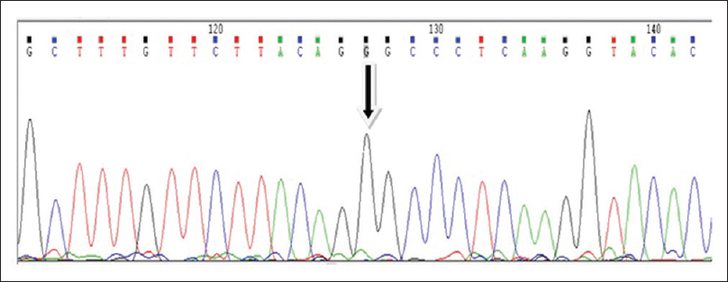 Figure 4: A representative image of COL4A1 wild type or normal allele bearing G (guanidine) at position c.1537G (black arrow). Embryos with this nucleotide sequencing profile were categorized as normal and qualified for potential implantation in surrogate mother