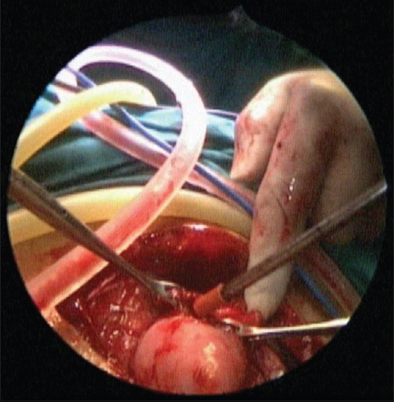 Figure 4: Drainage of hematometra after inserting stab incision over uterus