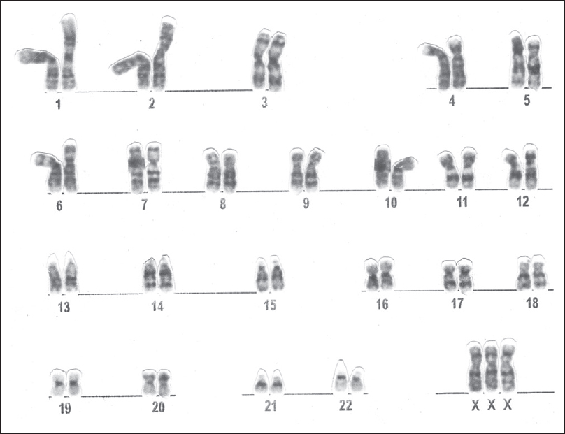 Figure 2: Metaphase of primary amenorrhea patient showing karyotype 47, XXX